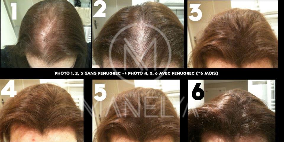 cheveux repousse fenugrec manelya